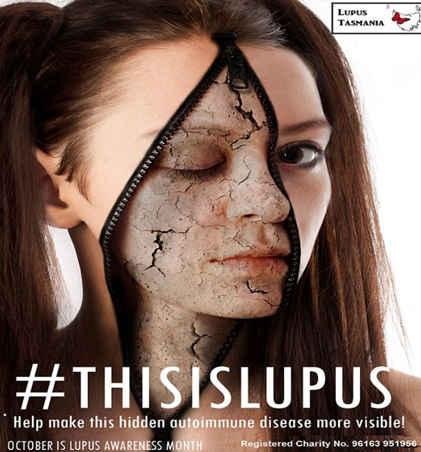 this is lupus